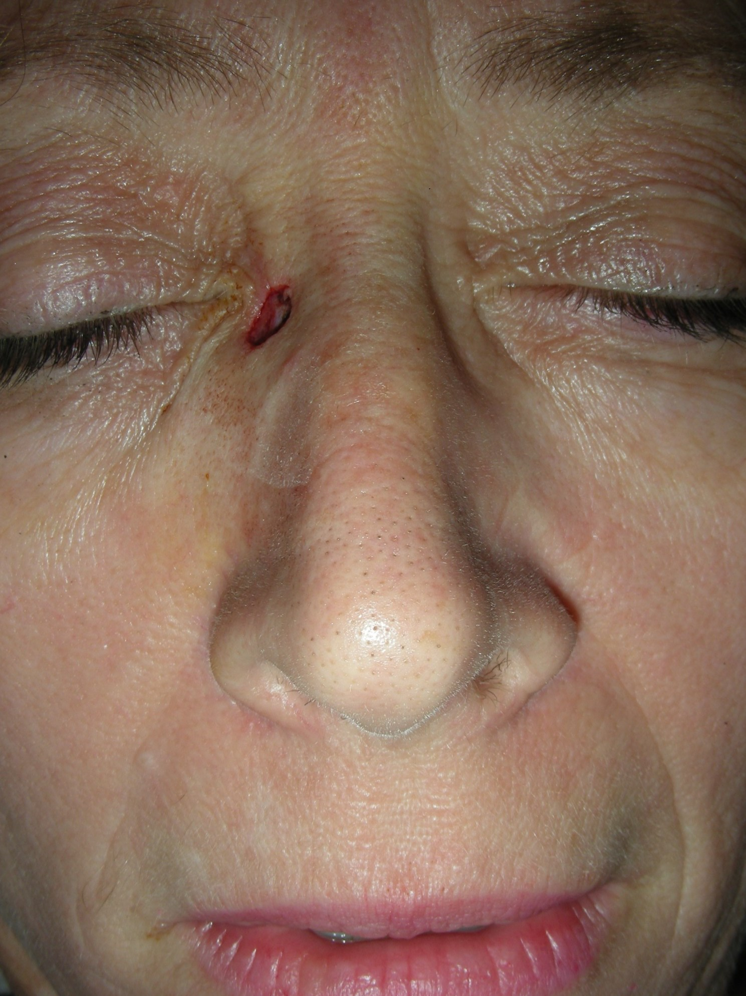 Mohs for Squamous Cell on Nose Prior to reconstruction