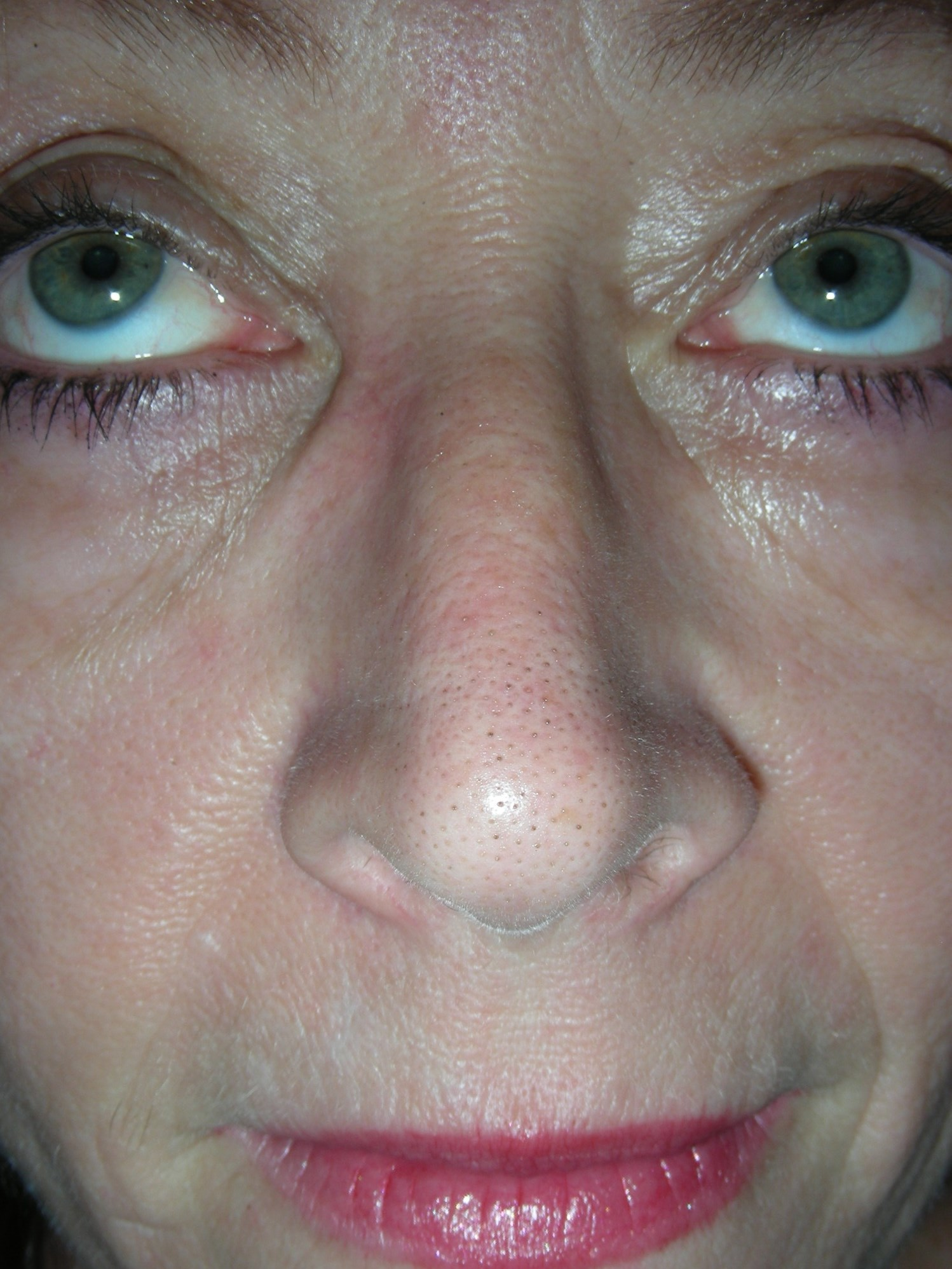 Mohs for Squamous Cell on Nose Six weeks post reconstruction