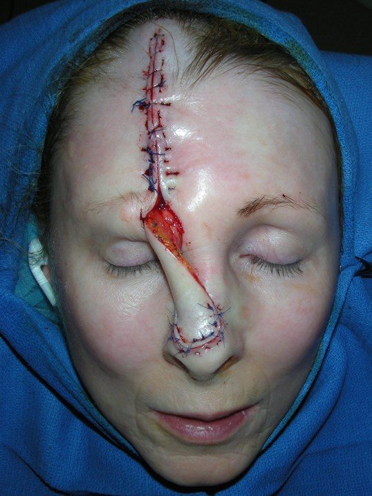 Forehead Flap for Basal Cell After reconstruction