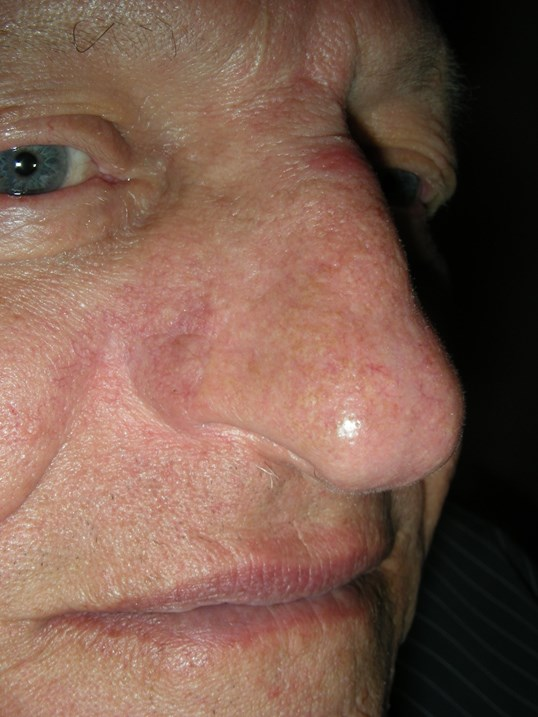 Basal Cell Cancer Alar Nose After