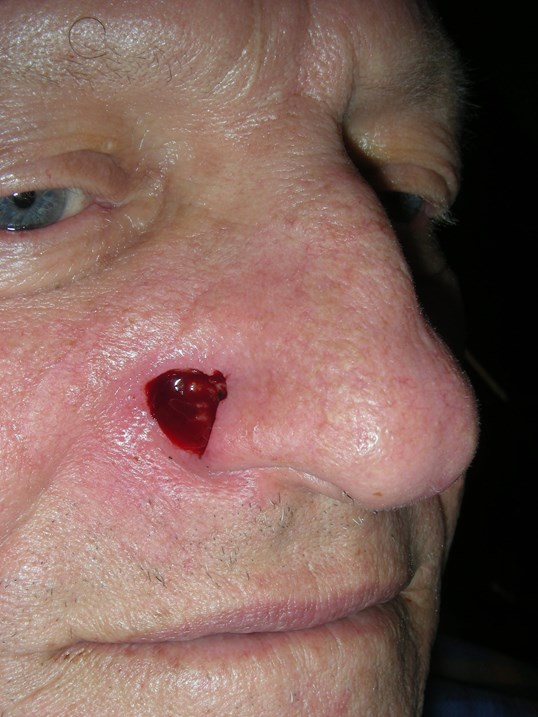 Basal Cell Cancer Alar Nose Before